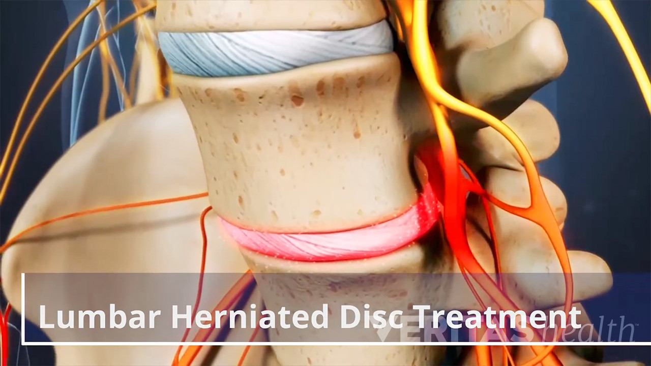 Herniated Disc Surgery
